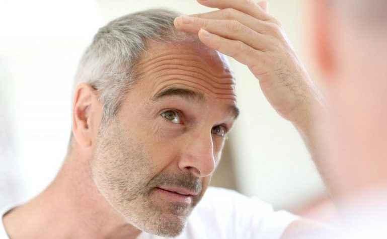 Ранняя потеря волос у мужчин в 30 лет: причины и методы решения проблемы