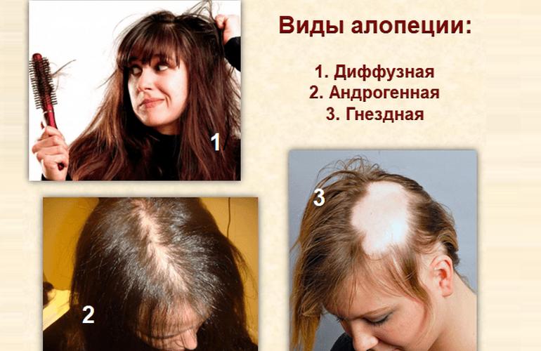 Диффузная алопеция у женщин. фото, причины, лечение медикаментами, процедуры, народные средства