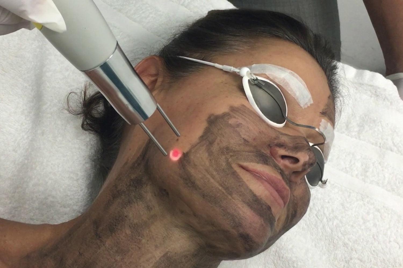 Преимущества и недостатки карбонового пилинга лица