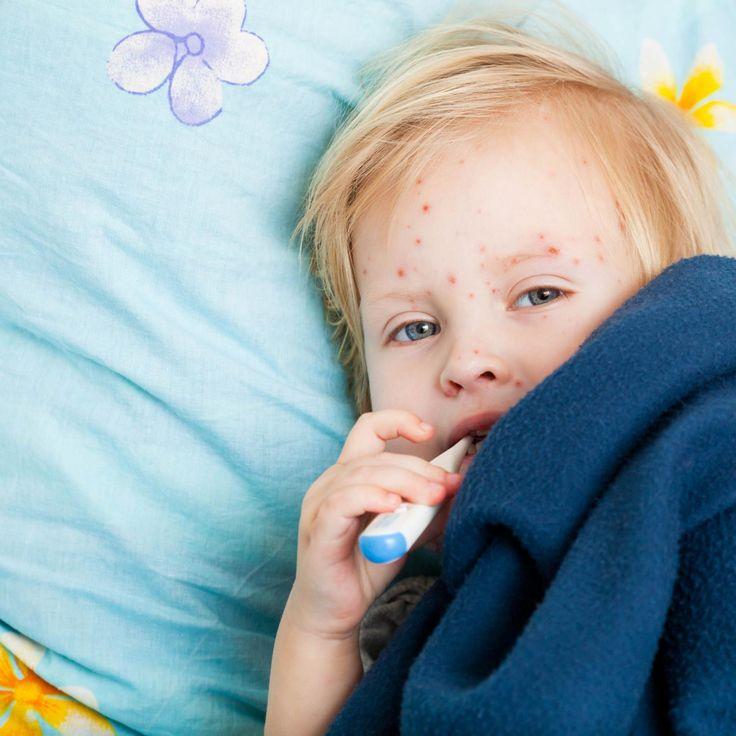 Стрептодермия у детей и взрослых – диагностика, лечение, последствия и осложнения (фото), профилактика. ответы на часто задаваемые вопросы