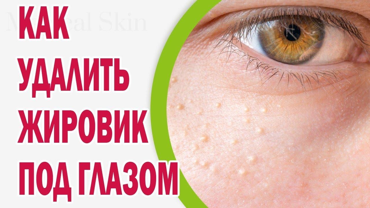 Как избавиться от жировиков на лице? лечение, причины появления, симптомы. фото