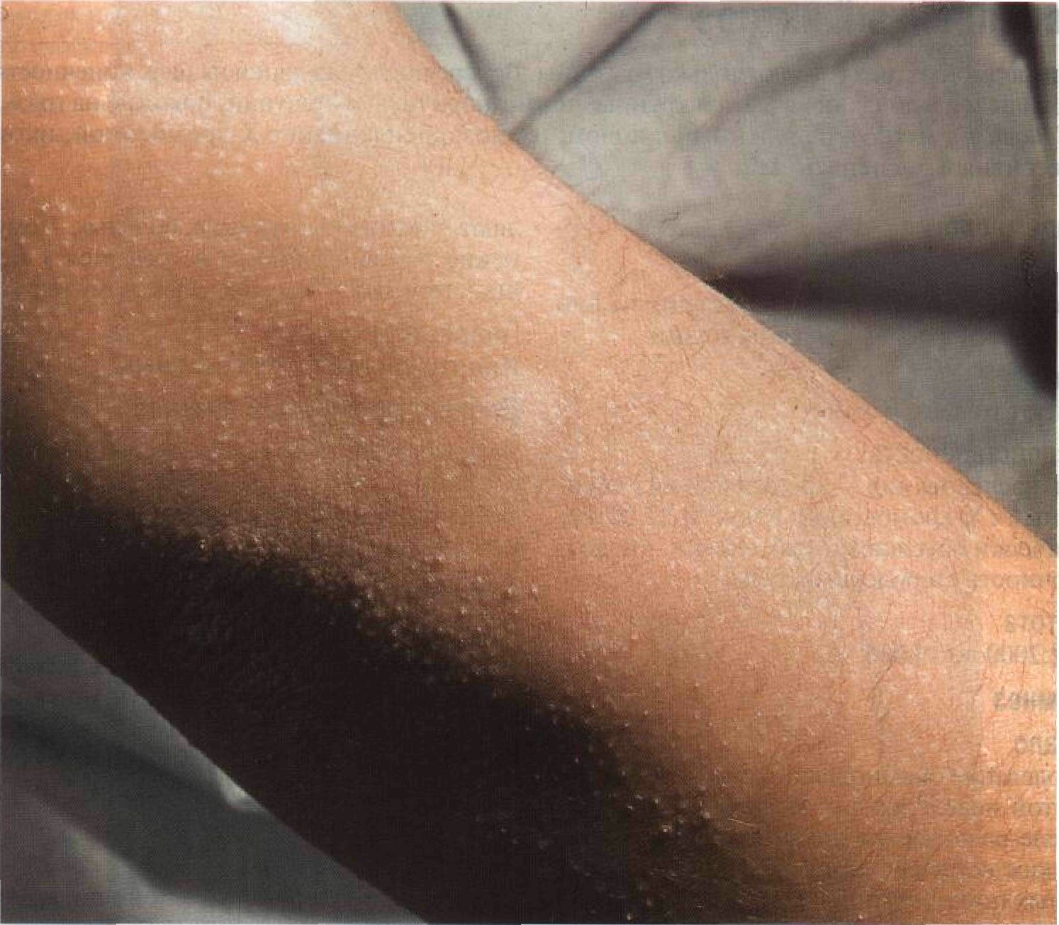 Фолликулярный гиперкератоз: избавляемся от гусиной кожи на теле