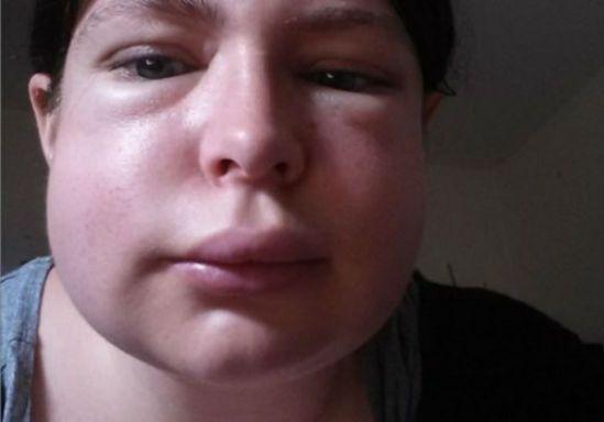 Почему опухло лицо: причины развития отёков на лице, что делать, какие заболевания, как лечить, профилактика и опасность