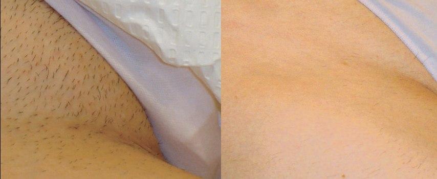 Фотоэпиляция в зоне глубокого бикини — особенности метода, фото до и после процедуры