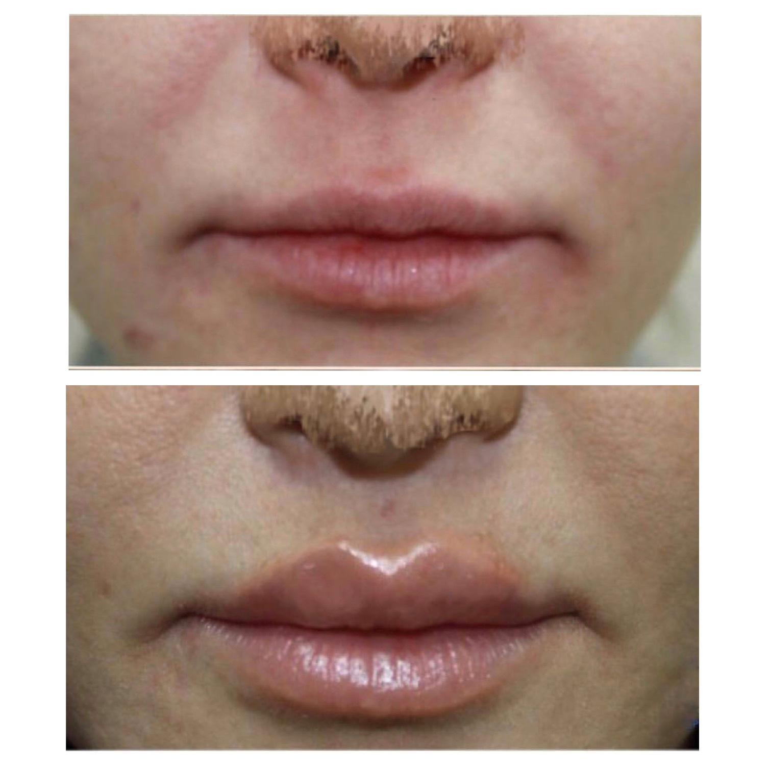 Эстетическая хейлопластика: создаем губы по индивидуальному дизайну, которые украсят ваше лицо