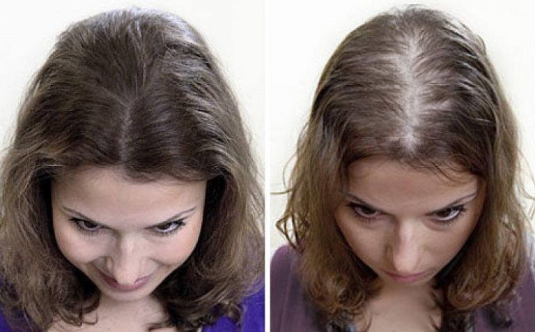 Виды и причины возникновения диффузной алопеции у женщин
