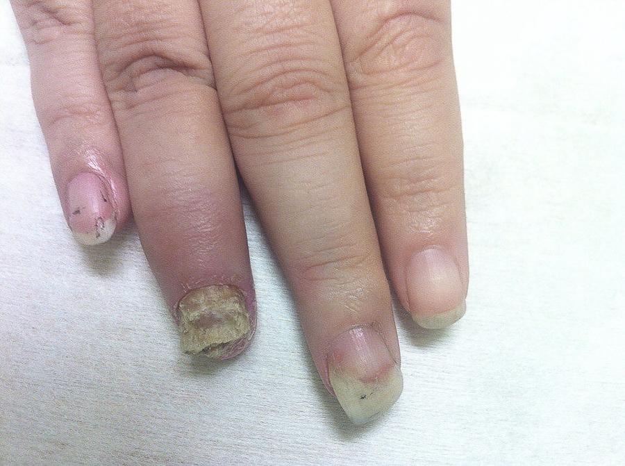 Ониходистрофия ногтей – признаки болезни эффективные методы лечения ониходистрофии как болезни ногтей | портал 1nep.ru