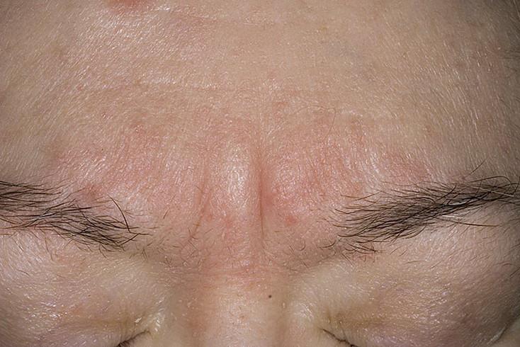 Причины появления себореи и ее лечение