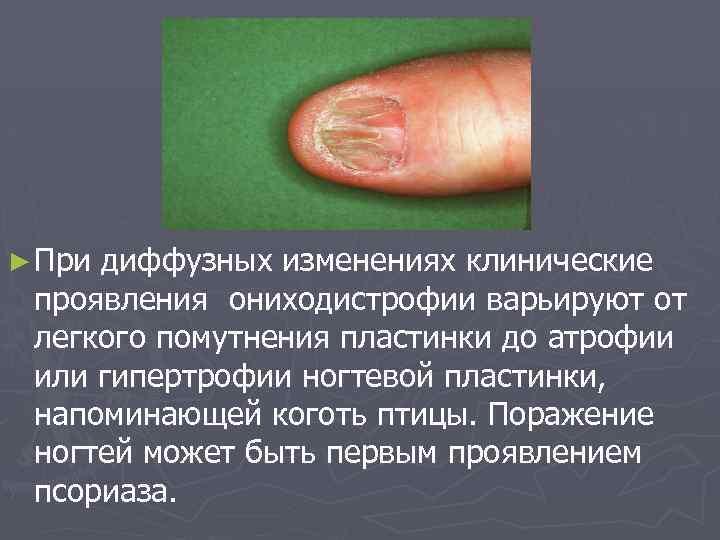 Красный плоский лишай: симптоматика, формы, лечение