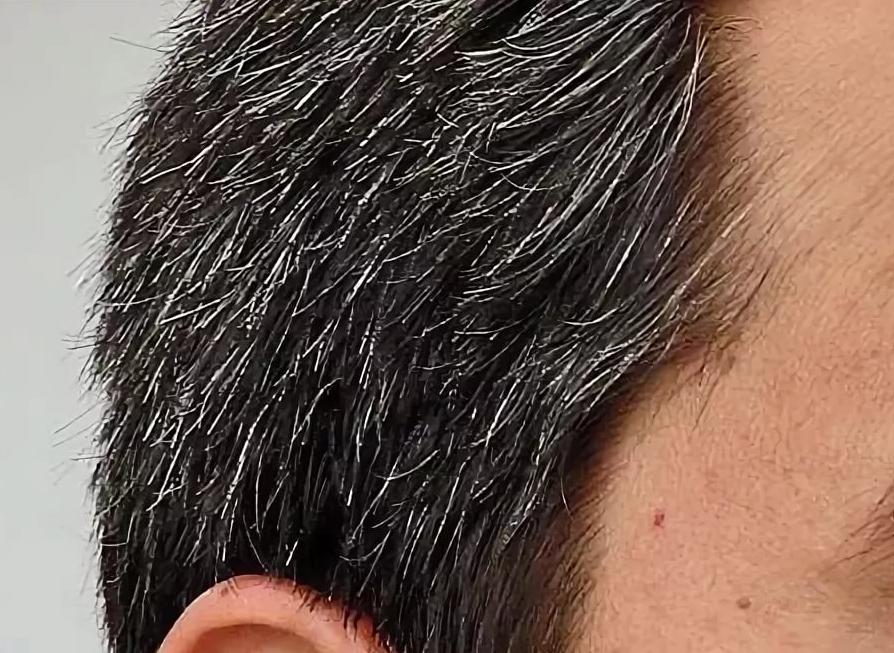 Почему в молодом возрасте седеют волосы на голове? ищем причины и разбираемся в ситуации