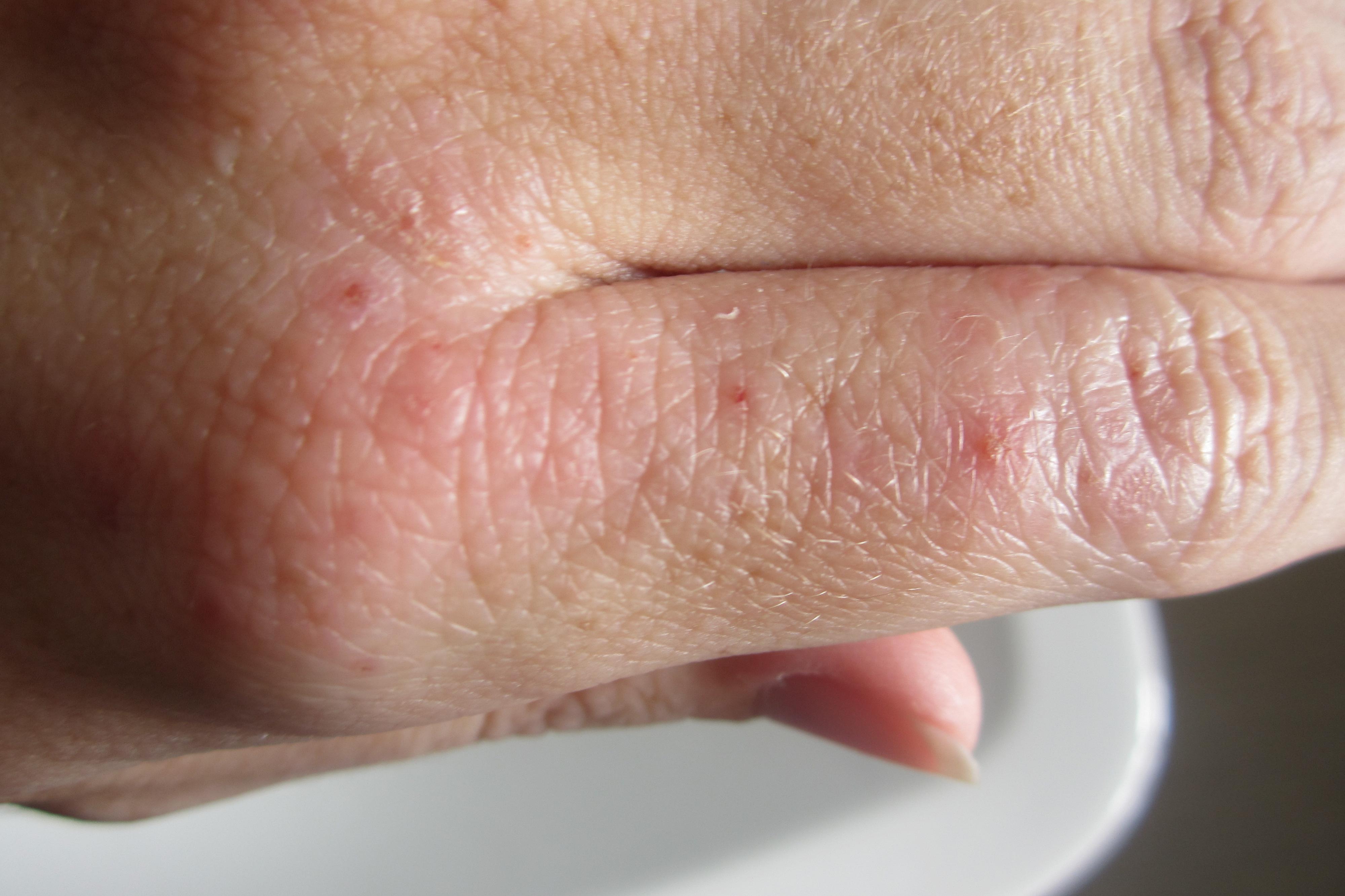 Экзема на ногах — причины и лечение, начальная стадия