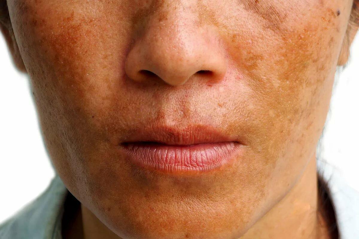 Пигментные пятна на коже лица, причины появления и методы устранения