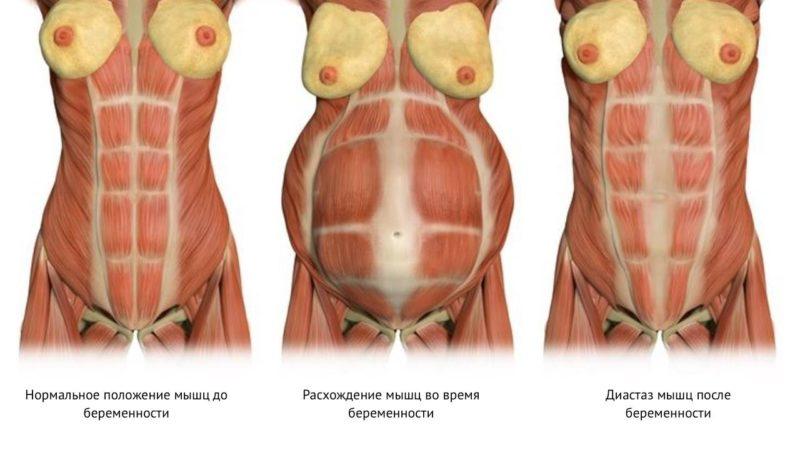 Диастаз после родов — что это. упражнения при диастазе прямых мышц живота, симптомы и признаки, как определить, лечить