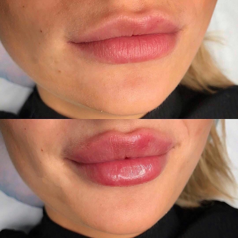 Увеличение губ гиалуроновой кислотой: подготовка к коррекции, результаты до и после, последствия