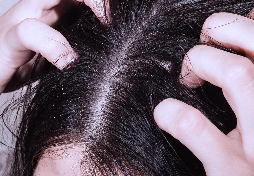 Перхоть, себорея и выпадение волос: причины, диагностика, лечение