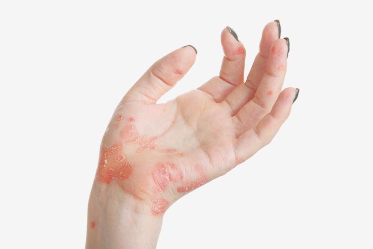 Симптомы и признаки возникновения псориаза, методы лечения и профилактика данного кожного заболевания