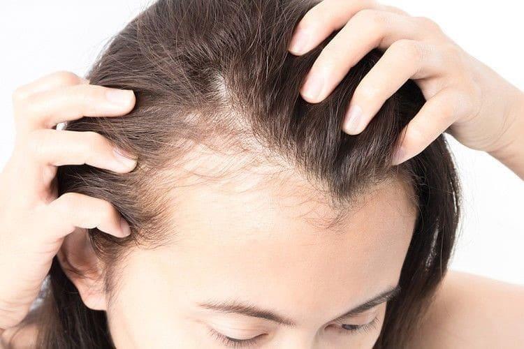 Выпадение волос: возможные причины и способы избавления от проблемы