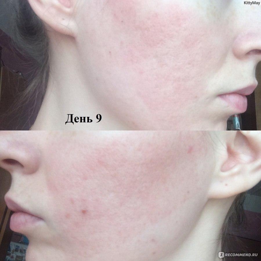 Лазерная шлифовка лица: лучшая процедура обработки лазером кожи лица