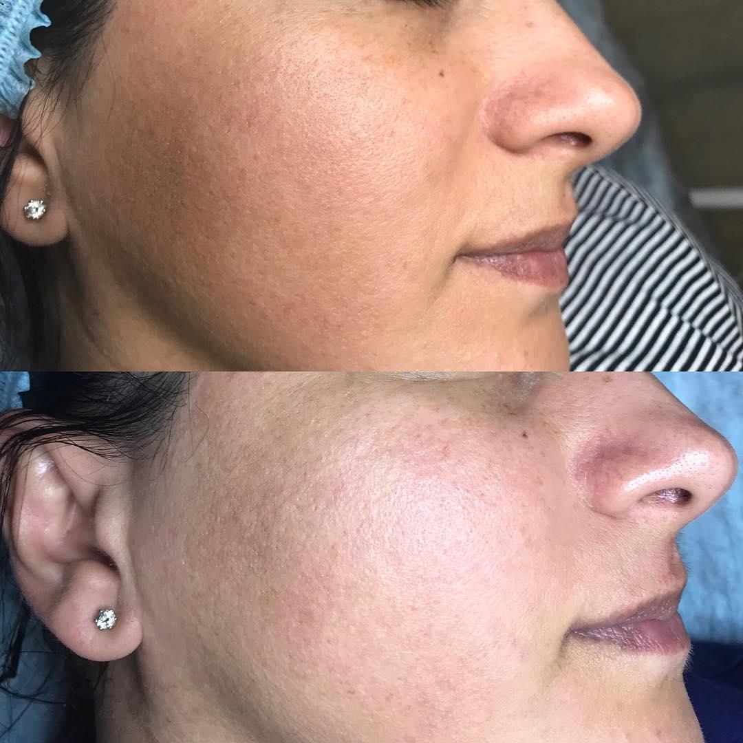 Фракционная мезотерапия лица — что это такое, как делается, эффективность от рубцов, растяжек, мешков под глазами, цена курса, фото до и после, отзывы
