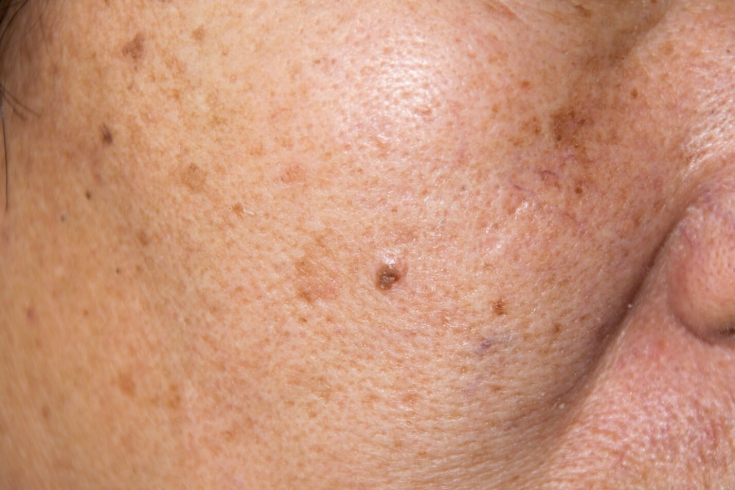 Кератома. фото, лечение, народные средства и удаление кератомы кожи на лице и теле.