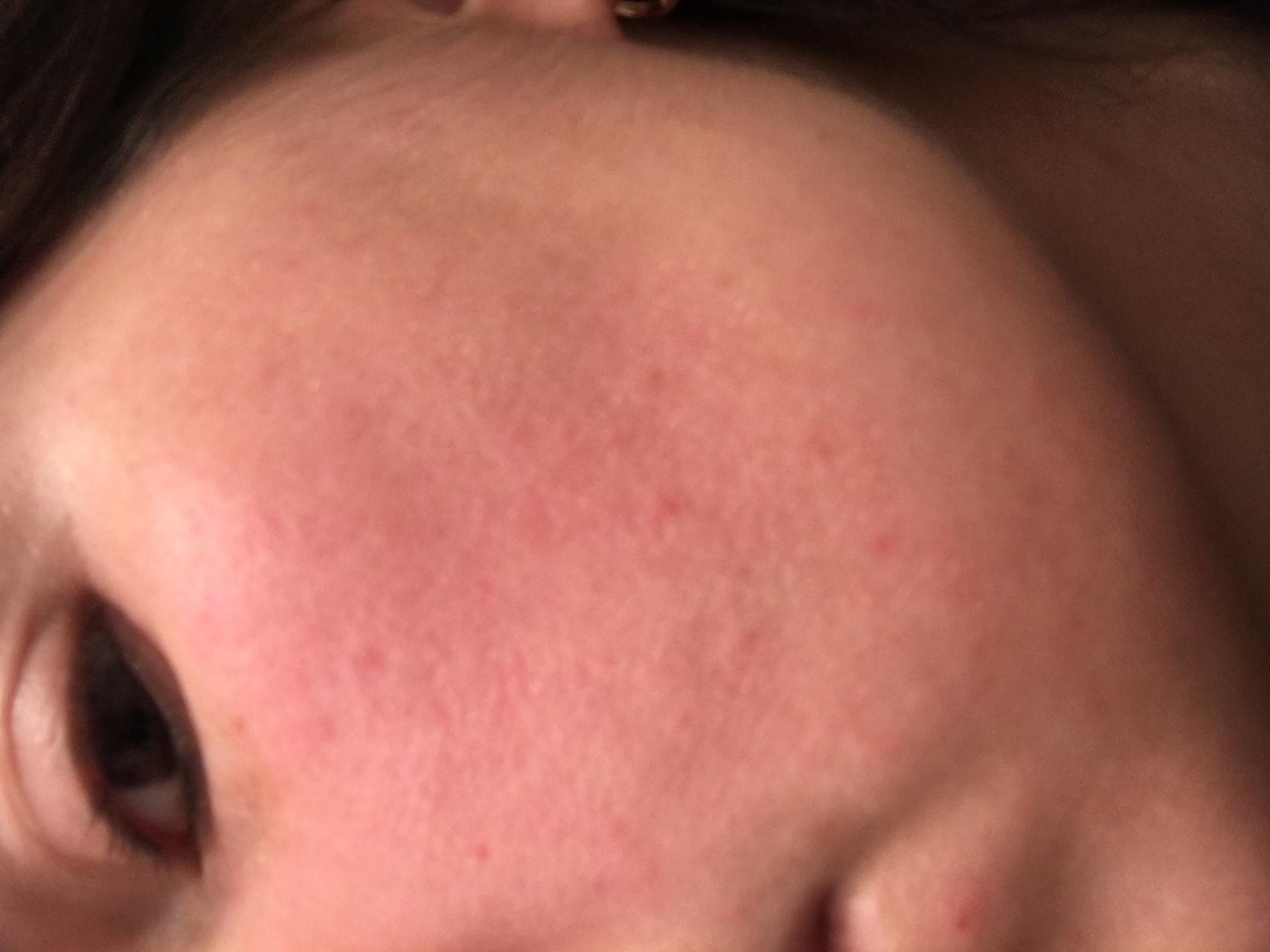 Нездоровый красный цвет — это гиперемия кожи лица. на помощь придут косметология и медицина