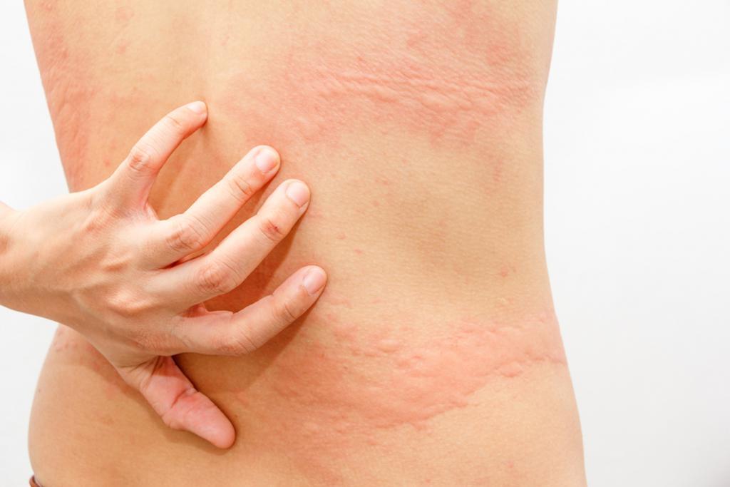 Крапивница на лице — сигнал sos! рекомендации при появлении аллергической реакции по комплексному лечению
