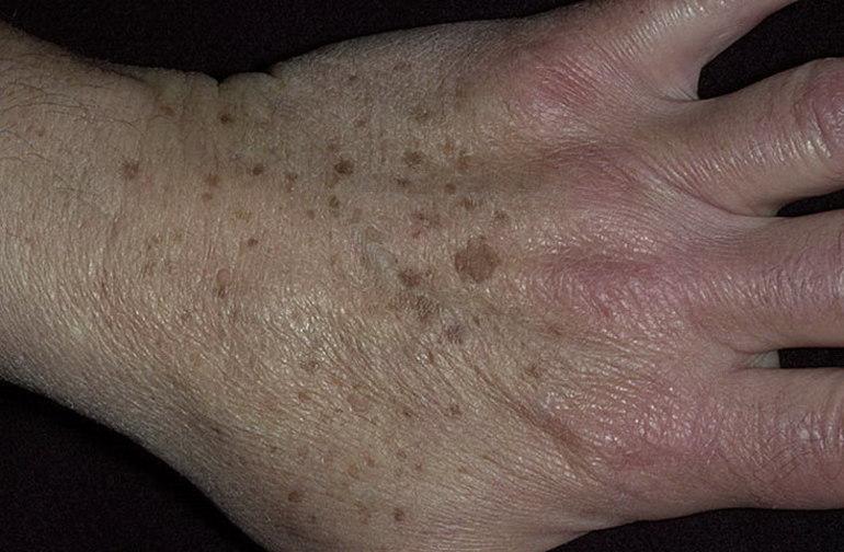 Кератома: фото, симптомы, причины и лечение старческой, себорейной кератомы + удаление новообразования и народные средства лечения