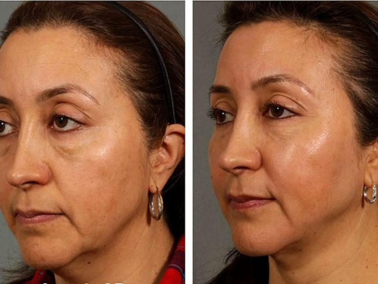 Филлеры для лица: избавляемся от морщин без операции