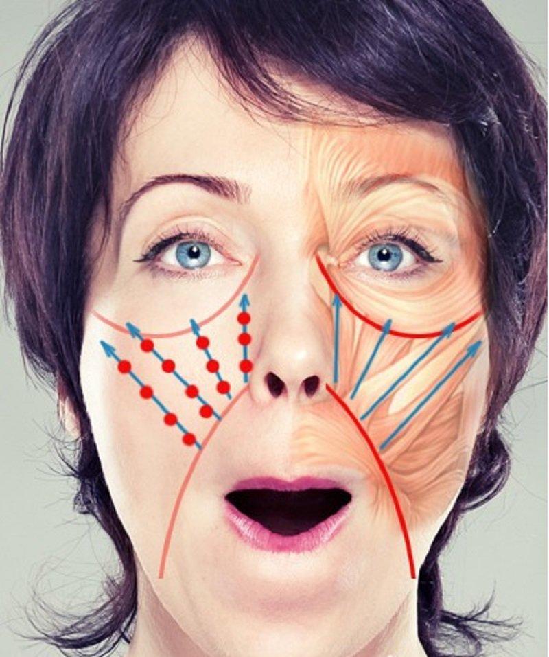 Как убрать носогубные морщинки на лице