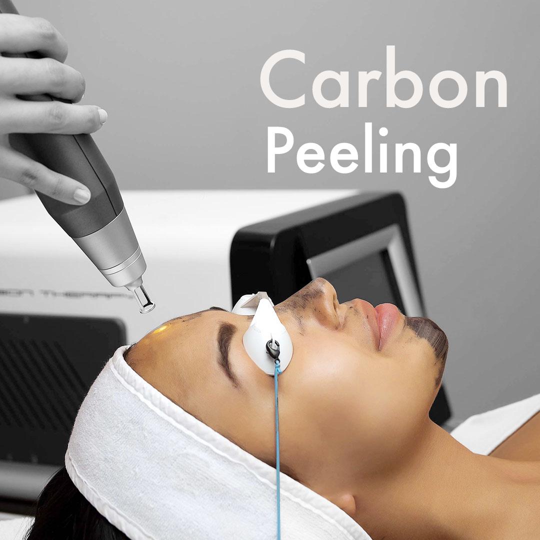 V carbon system