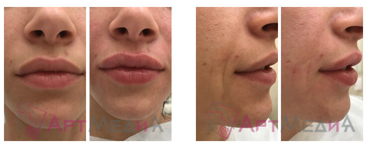 Коррекция половых губ: виды и как проходит операция