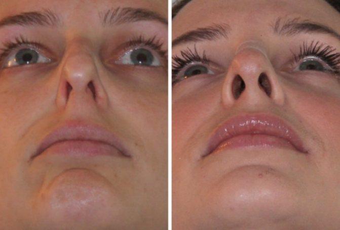 Когда стоит делать операцию от искривления носовой перегородки