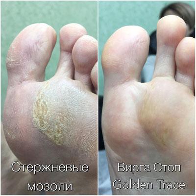 Как удалить мозоль на мизинце ноги? с чего начать лечение и когда надо обращаться к врачу?