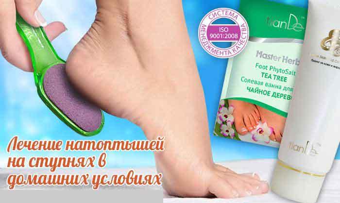 Народные средства от натоптышей: чем размягчить сухие мозоли на ступнях, как лечить их чистотелом или маслом и какими еще методами вывести с подошв ног, а также фото