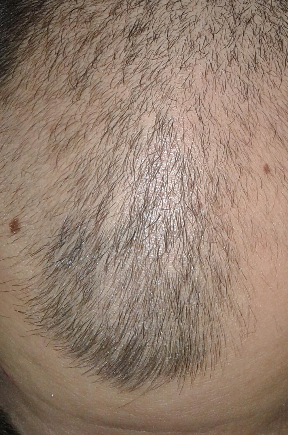 Облысение у мужчин (алопеция): признаки, причины, лечение