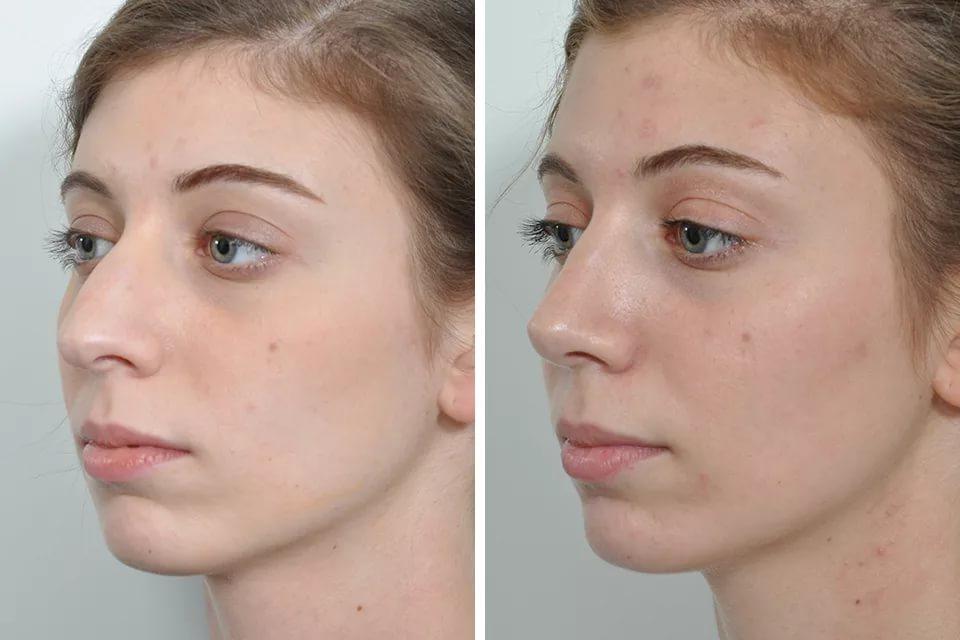 Септопластика: исправление искривления носовой перегородки