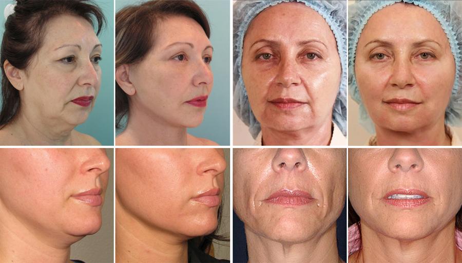 Узнайте цену на самую популярную процедуру: подтяжку лица нитями