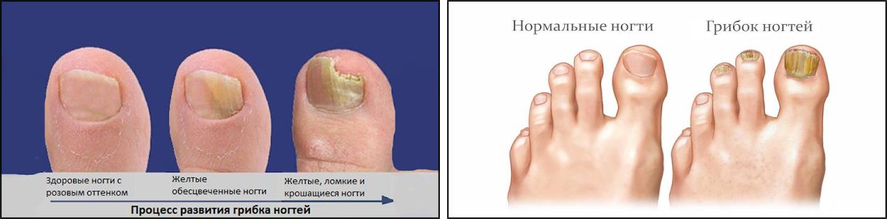 Спрей от грибка ногтей на ногах — список самых эффективных