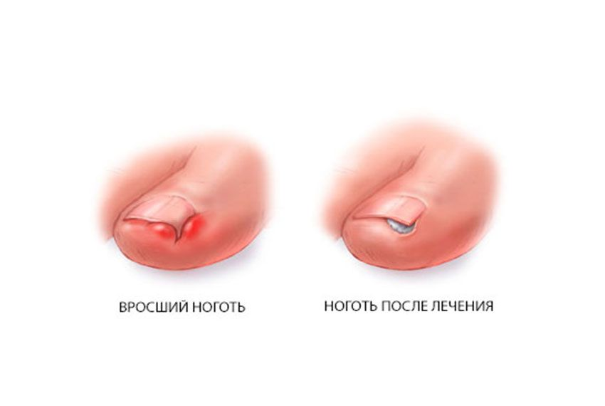 Вросший ноготь. что делать, когда нужно удалять. :: polismed.com