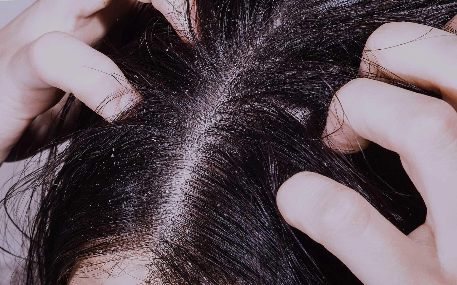 Все про болезни волос и кожи головы