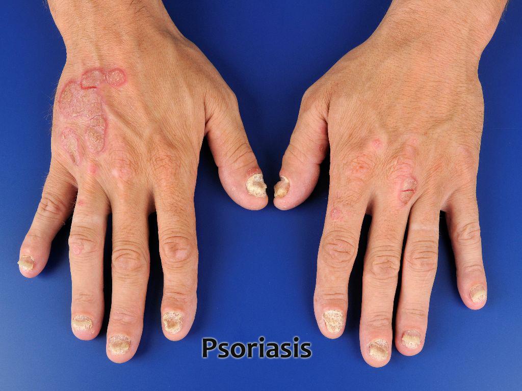 Псориаз симптомы, лечение и профилактика чешуйчатого лишая
