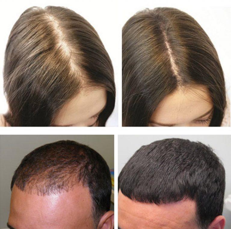 Димексид — применение в косметологии для роста волос в 2019