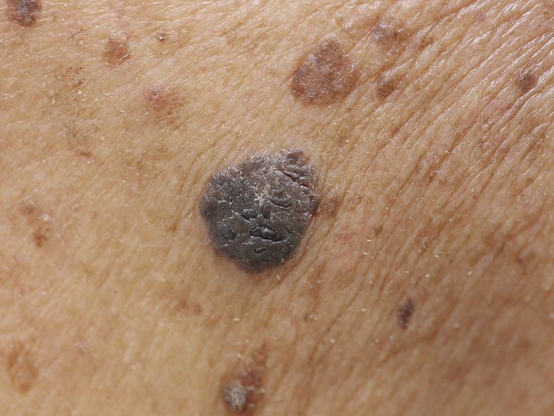Базальноклеточный рак кожи