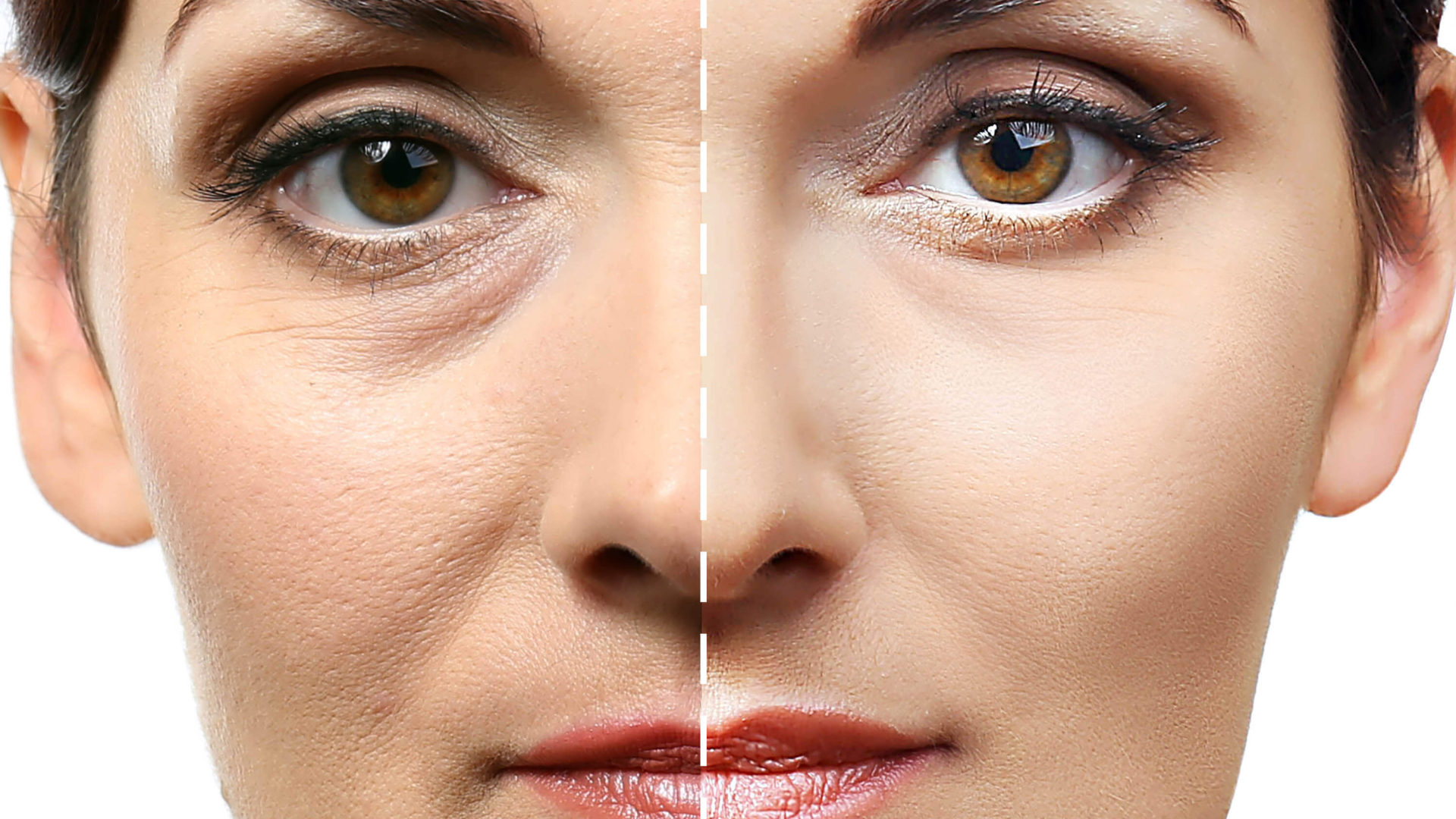 Как убрать морщины под глазами в домашних условиях