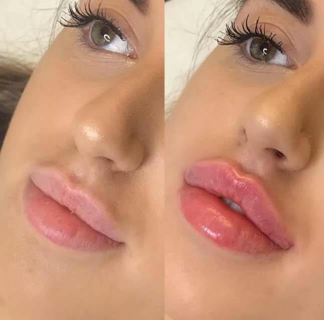 Коррекция губ филлерами: изменение формы и объема