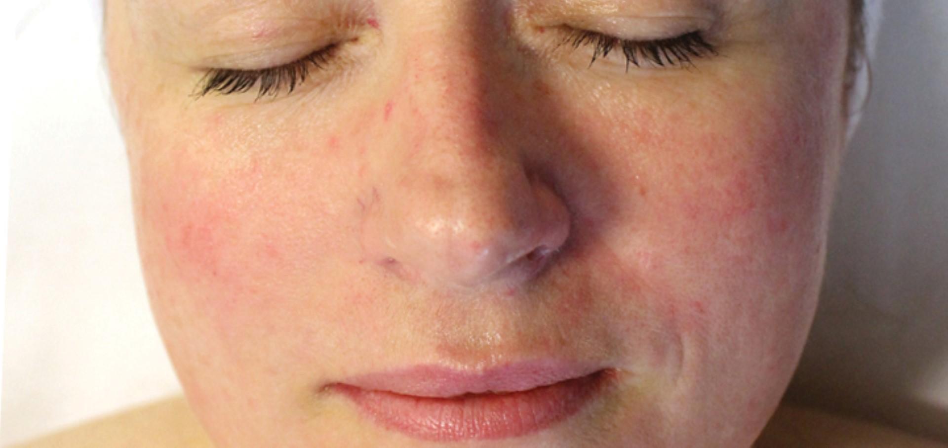 Обзор гиперемии кожи: причины патологии, виды, лечение