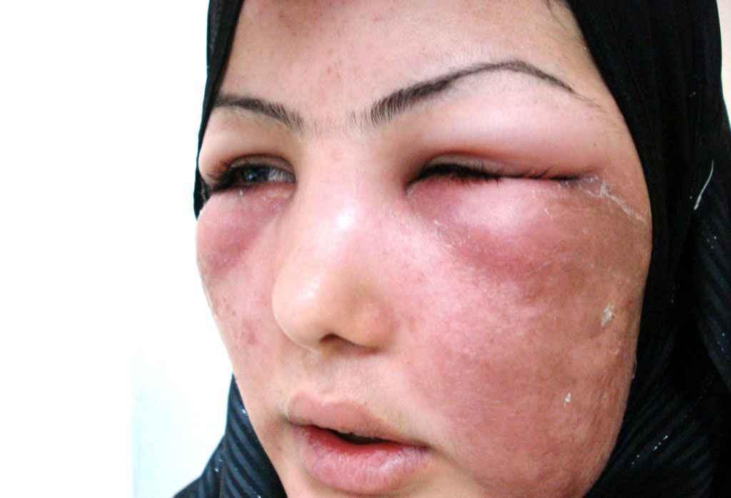 Рожистое воспаление кожи лица: симптомы, методы лечения, фото рожи, меры профилактики и прогноз