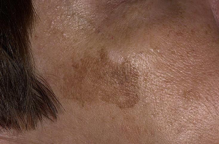 Гиперкератоз кожи лица: причины, симптомы и лечение