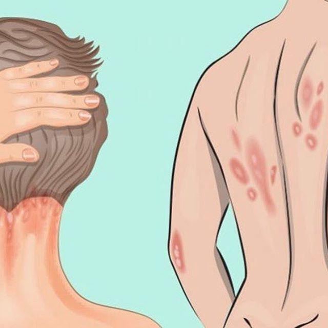 Вульгарный (бляшечный) псориаз: как лечат и почему появляется