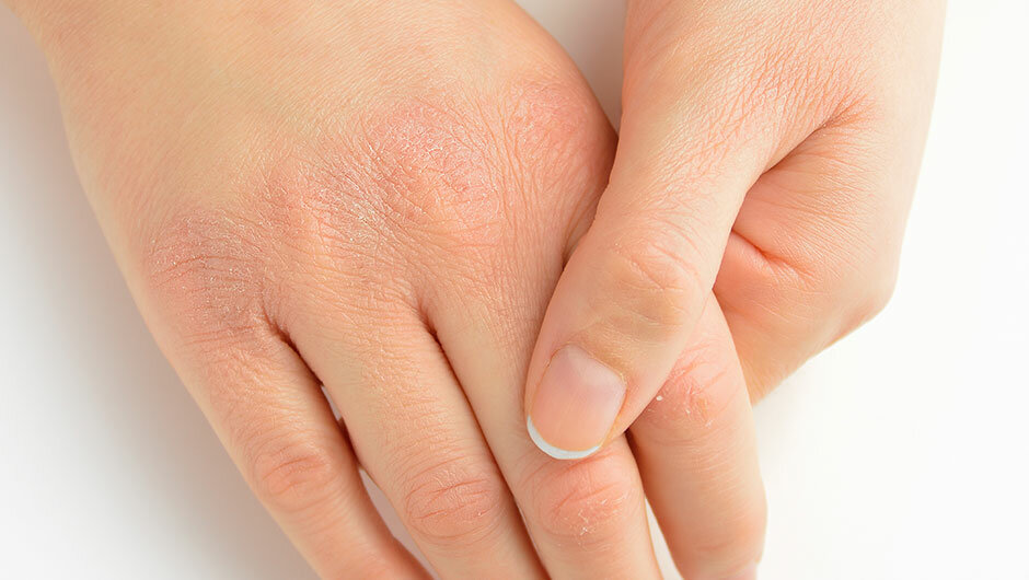 Если слезает кожа на пальцах рук